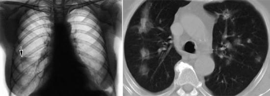 фото эозинофильные инфильтраты диагностика трихинеллез