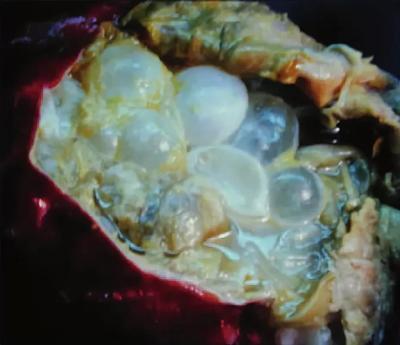 эхинококкоз печень