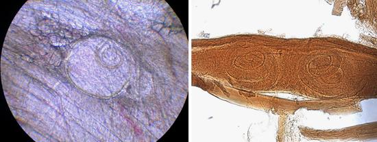 трихинеллы фото в организме