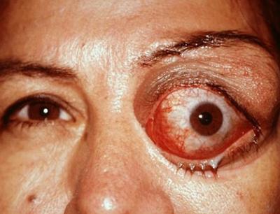 эхинококк глаз