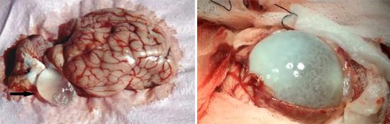эхинококкоз мозга