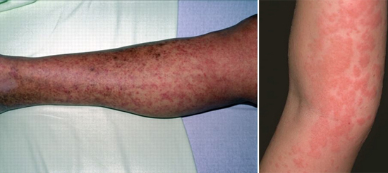 аллергический дерматит симптом трихинеллез