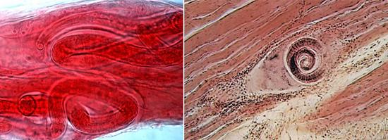 фото трихинелла мышцы