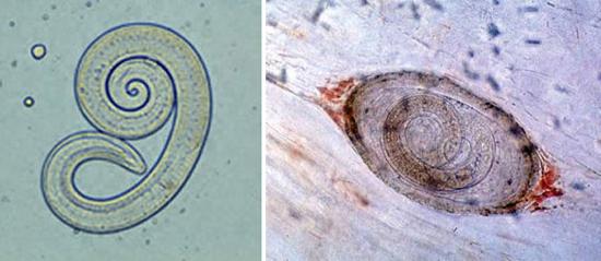 личинки трихинелл фото