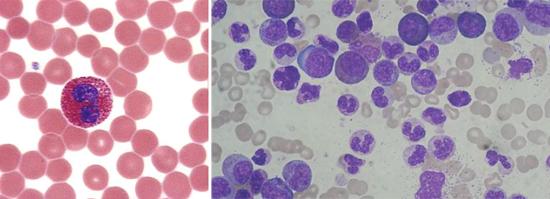 эозинофилия признак трихинеллеза