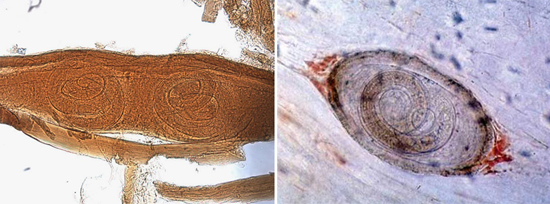 личинки Trichinella spiralis