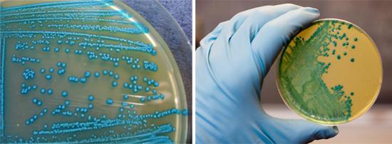 листерии хромогенный агар