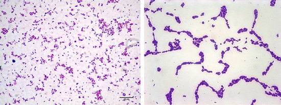 листерии под микроскопом фото
