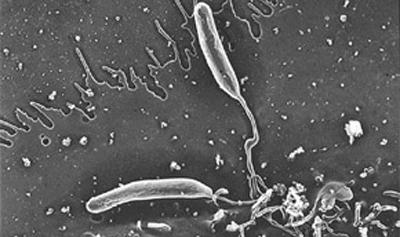 листерии под микроскопом
