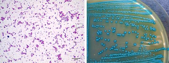 беременность анализ на листериоз фото