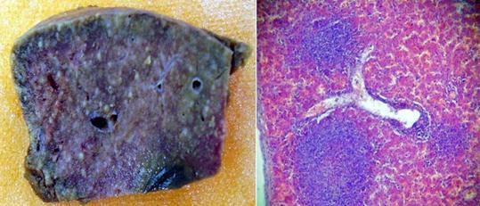 листериоз печень