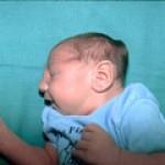 Все о листериозе новорожденных детей