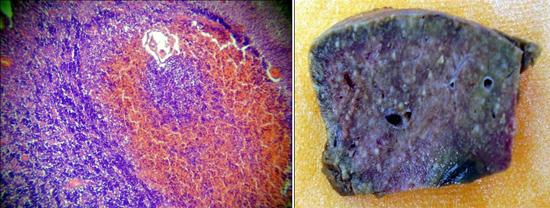 листериоз фото головной мозг печень