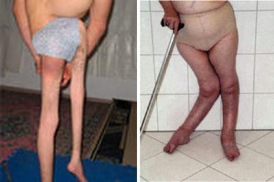 полиомиелит фото последствия поражение ног