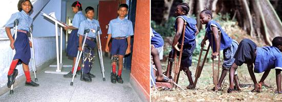 заболевание полиомиелит фото