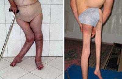 последствия полиомиелита фото парез
