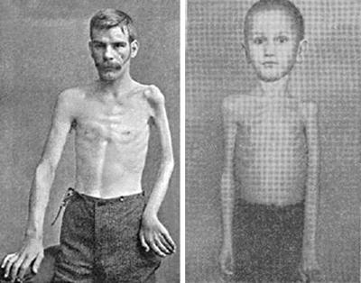 фото полиомиелита