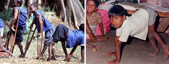 вспышки полиомиелита вирус