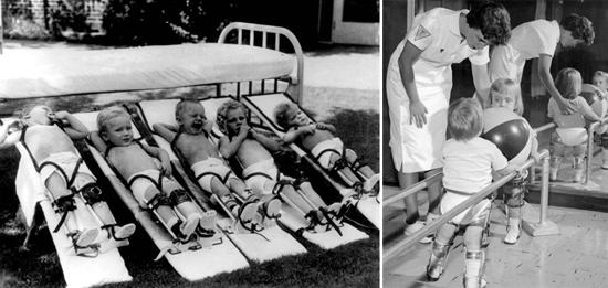 лечение паралич полиомиелит