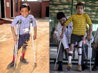 лечение полиомиелита