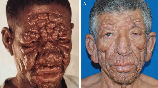 фото больные проказой лепра