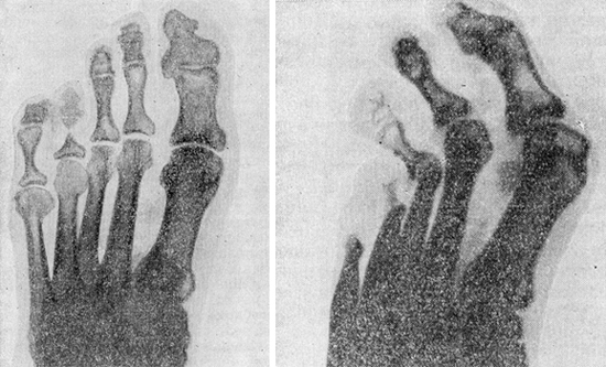 рентгенограмма лепра руки