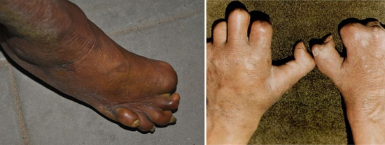 проказа ноги руки