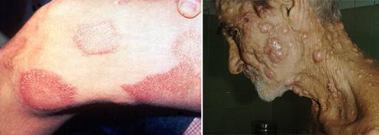 лепра туберкулез фото