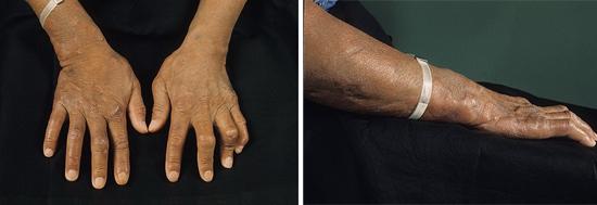 когтеобразная кисть лепра