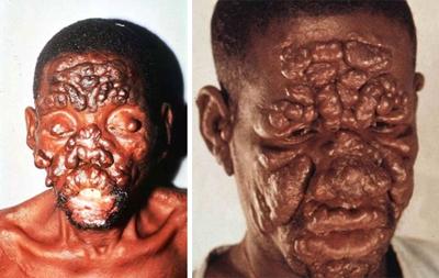 лепроматозная лепра последствия