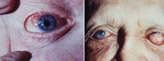 поражение глаз лепра