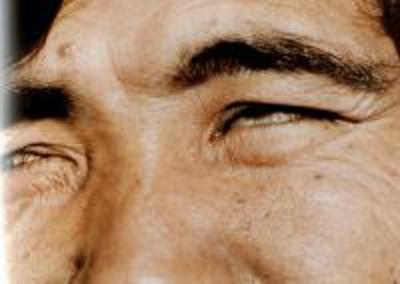 атрофии мышц глаза фото