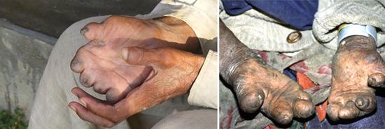 последствия лепра фото