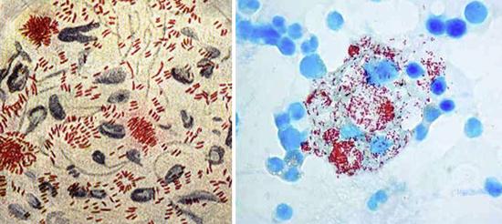 Mycobacterium Leprae возбудители лепры