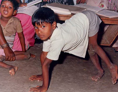 полиомиелит у ребенка