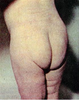 спинальная форма полиомиелита у ребенка