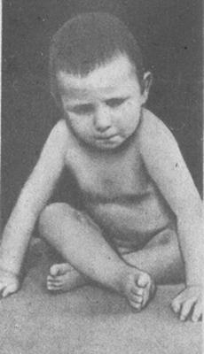 симптомы полиомиелита треножника