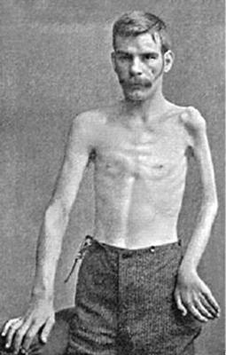 simptom-poliom-p25