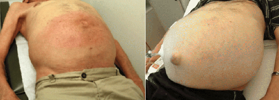 последствия вирусного гепатита С