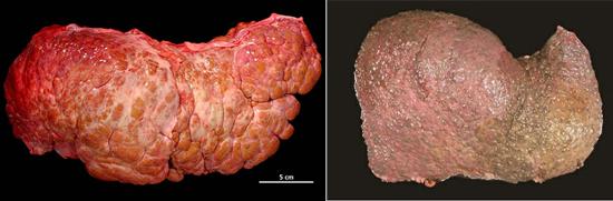 цирроз печени - последствие гепатита С