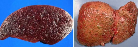 поражение печени селезенки гепатит С фото