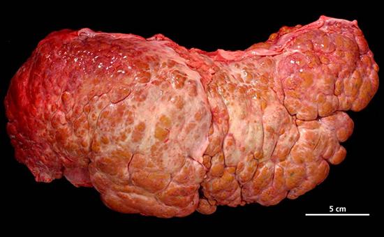 осложнение гепатита С