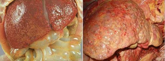 цирроз печени последствие гепатит