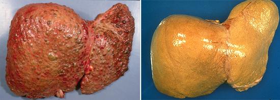 цирроз стеатоз печени гепатит
