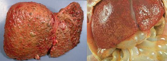 печень гепатит С
