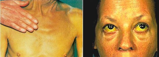 вирусный гепатит желтушная фаза