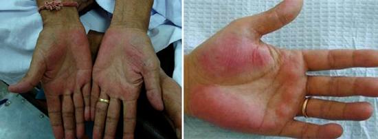 печеночные ладони признак гепатита