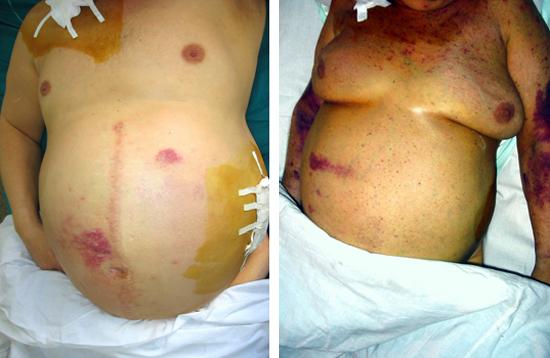 цирроз печени гепатит В