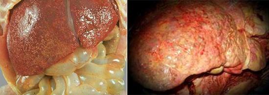 последствия гепатита С фото
