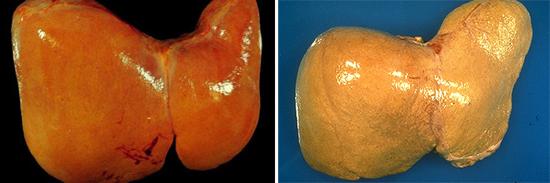 На фото признаки гепатита С